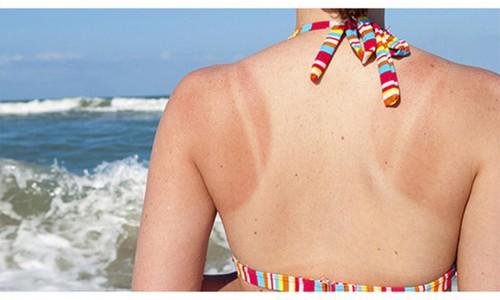 Làm sao để da hạn chế bị sạm nám dưới cái nắng gần 40 độ