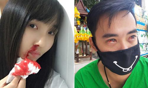 Dân Bangkok che mặt bằng đồ lót, hắt hơi ra máu vì ô nhiễm