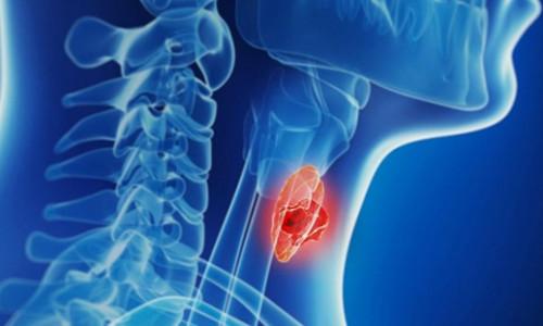 10 loại ung thư thường gặp ở người trẻ tuổi
